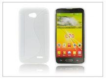LG L70 D320N/L65 D280 szilikon hátlap - S-Line - fehér