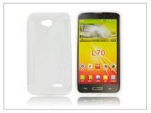 LG L70 D320N/L65 D280 szilikon hátlap - S-Line - átlátszó