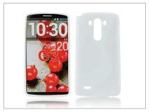 LG G3 D855 szilikon hátlap - S-Line - fehér